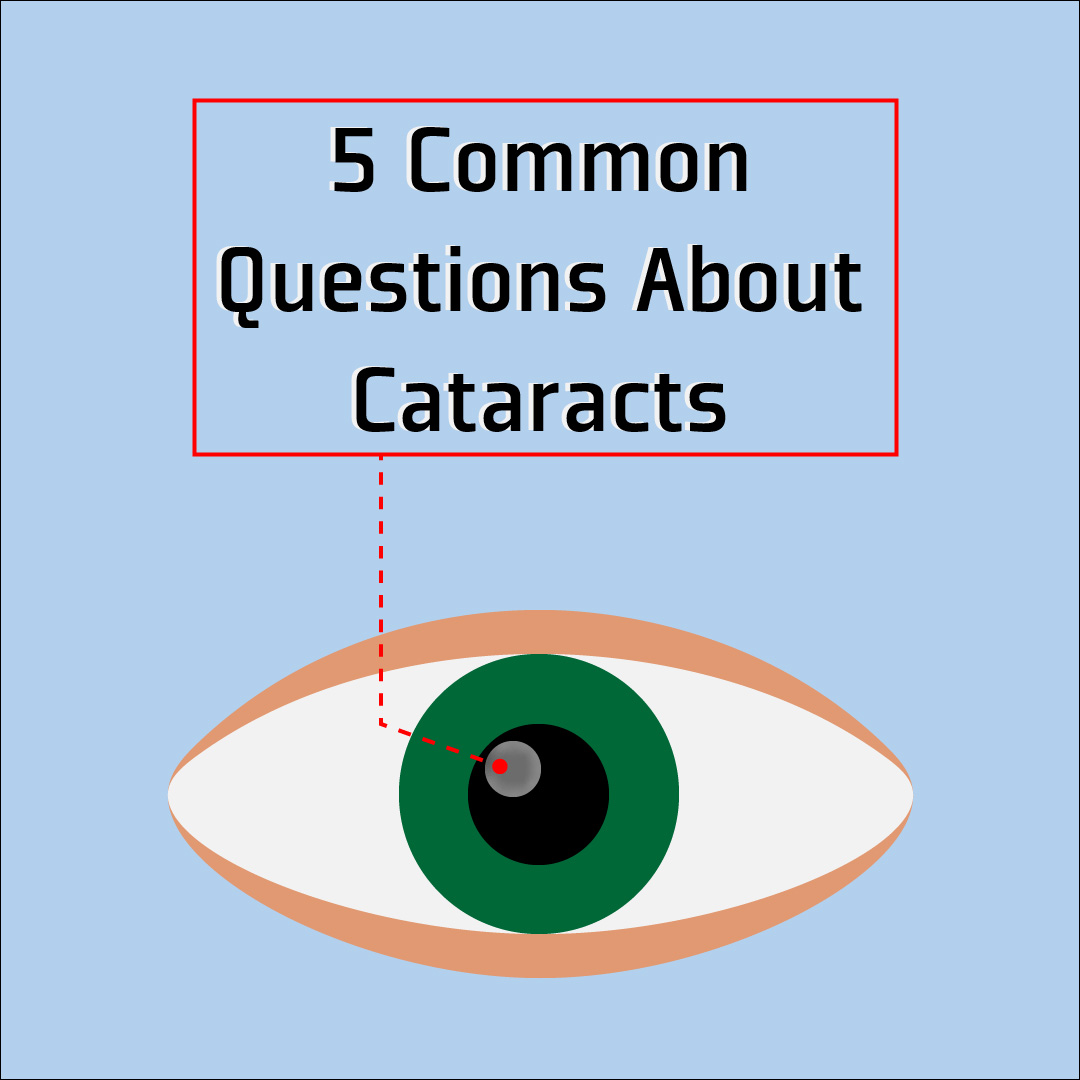 Questions About Cataracts