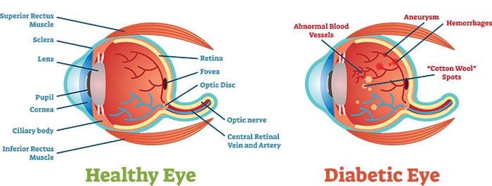 Diabetic Retinopathy rev