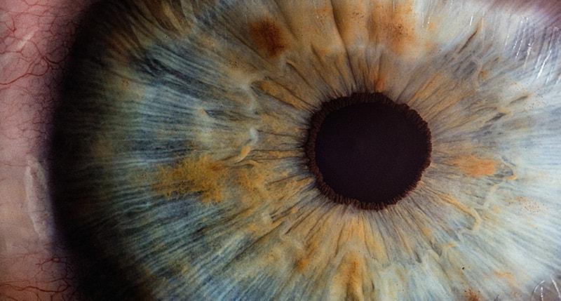 corneal abrasions adult pediatric eyecare local eye doctor near you